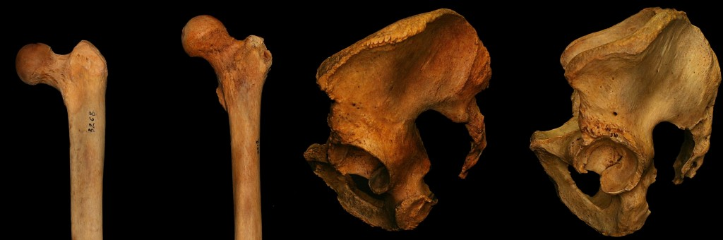 A pair of different femurs and hips.