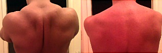 Full scapular retraction (left); zero scapular retraction (right).